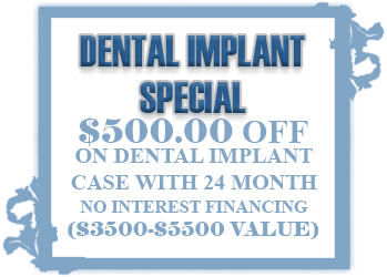 Dental Implant Special Promotion